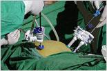 外科腹腔镜技术先神奇